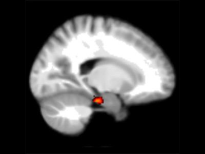 The entorhinal region of the brain found to be responsible for our 'homing signals' (Courtesy of Hugo Spiers, UCL)