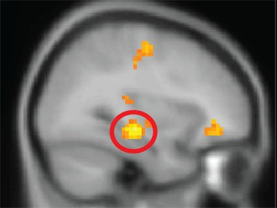 Hippocampus activity, circled in red, seen when forming event memories