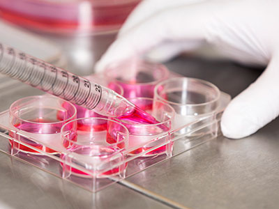 UCL cancer immunotherapy company, Autolus, launches with £30m investment